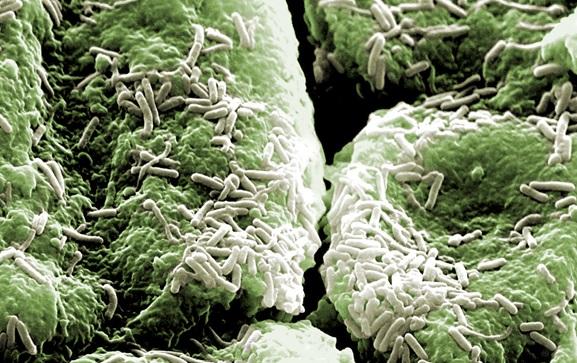 Bacterias de la aceituna ayudan a retirar metales tóxicos del intestino